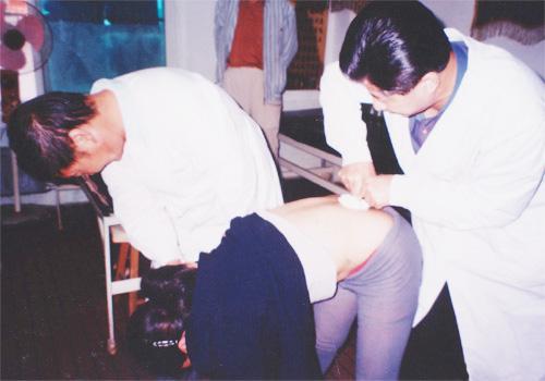 前突型腰脱手法整复